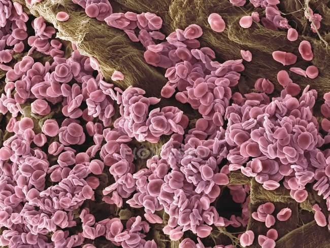 Glóbulos rojos agregados - foto de stock