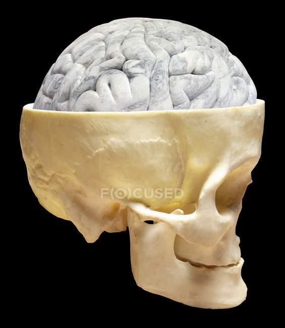 Cerebro humano y cráneo - foto de stock