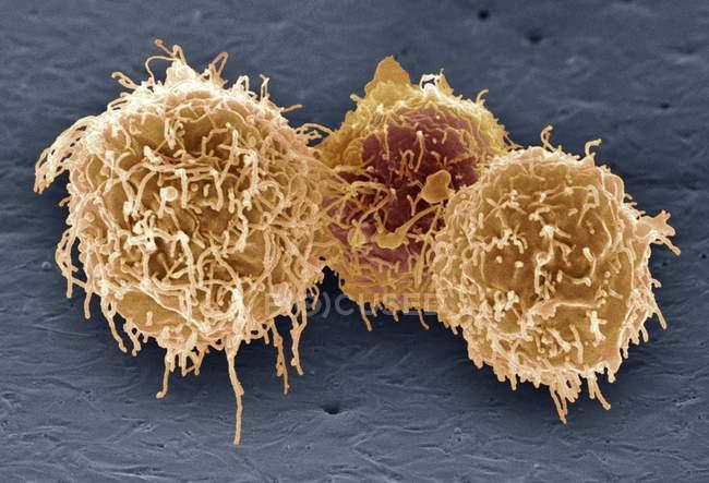 B-Lymphozyten weiße Blutkörperchen — Stockfoto