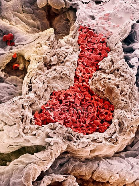 Blood vessel in the lung — Stock Photo