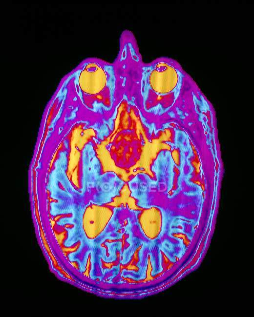 View of Pituitary tumor — Stock Photo