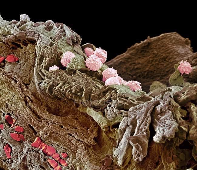 Pioderma enfermedad de la piel - foto de stock
