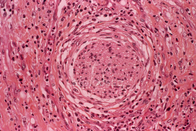 Light micrograph of a section of stomach tissue showing a lesion (centre) caused by a gastric ulcer. — Photo de stock