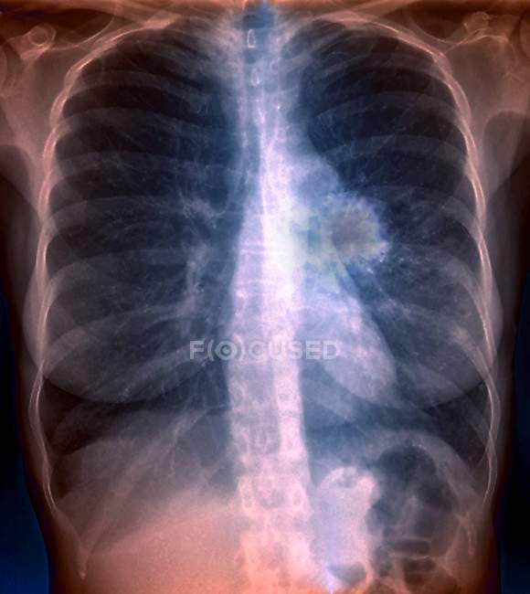 Radiografía de color que muestra cáncer en el pulmón izquierdo de un paciente de 55 años . - foto de stock