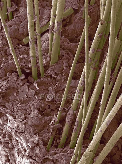 Eixos de cabelo que crescem da pele humana — Fotografia de Stock