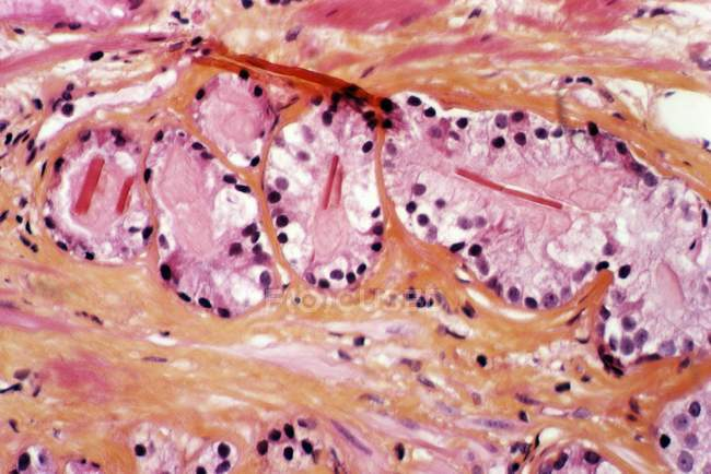 Prostate tissue showing Iadenocarcinoma — Stock Photo