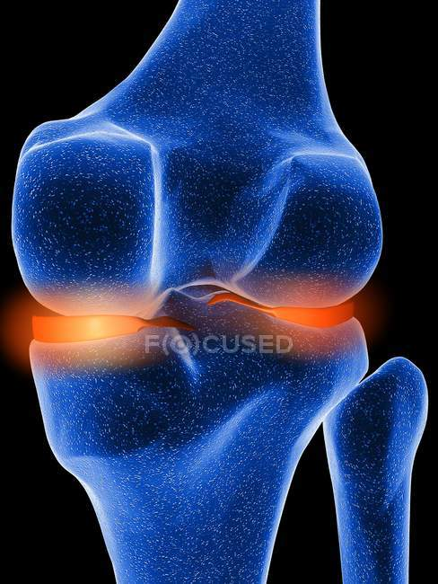 Inflamed knee cartilage — Stock Photo