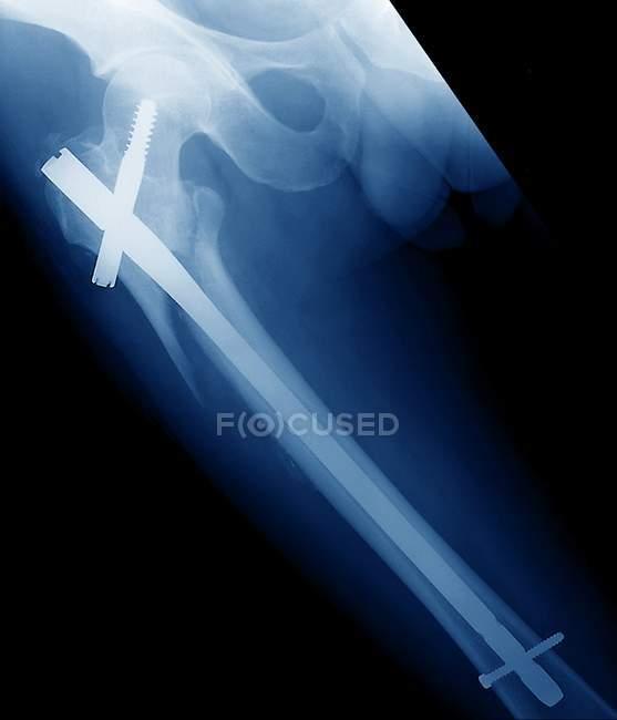 Piernas rotas, rayos X - foto de stock