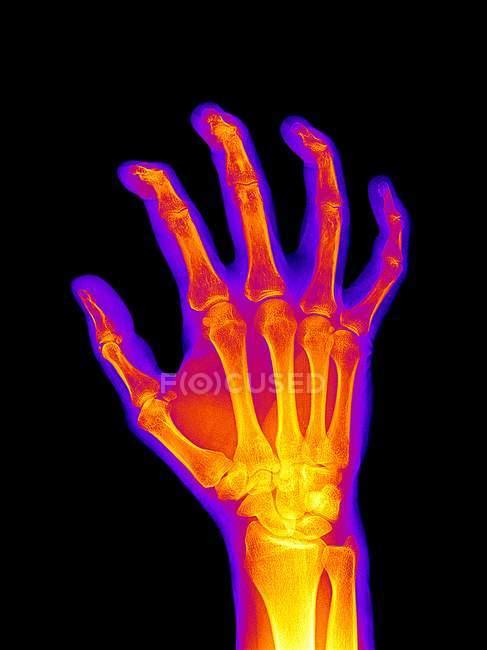 Anatomía de la mano artrítica - foto de stock