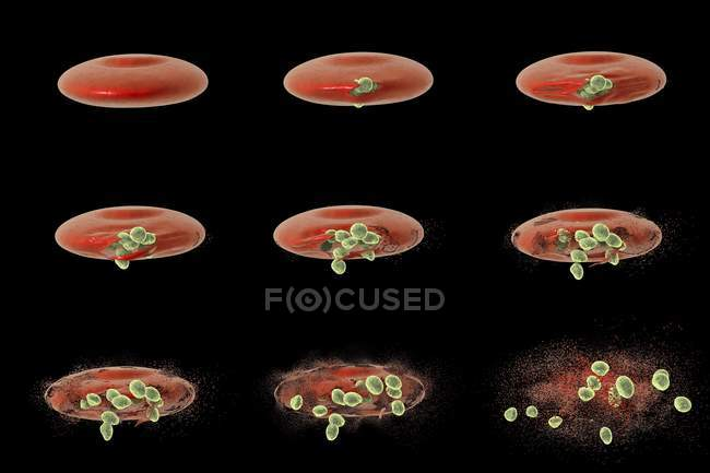 Computer illustration showing different stages of release of malaria merozoites from a red blood cell. — Stock Photo