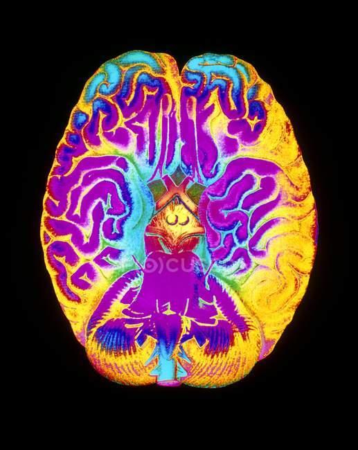 Mascagni obra de arte del cerebro humano - foto de stock