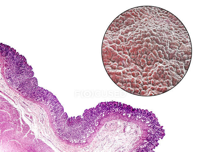 Light micrograph (bottom left) and computer illustration (top right) of the lining of the stomach, known as the mucosa. — Stock Photo