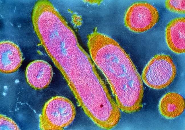 Bactérias Erysipelothrix rhusiopathiae — Fotografia de Stock