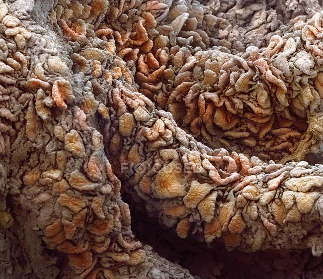 Villosités de la muqueuse du jéjunum — Photo de stock