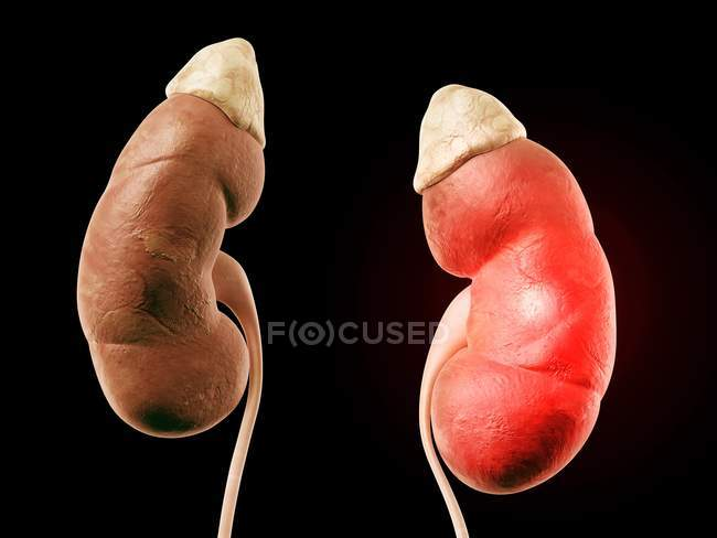 Human Kidneys With Adrenal Glands Stock Photo 160567586