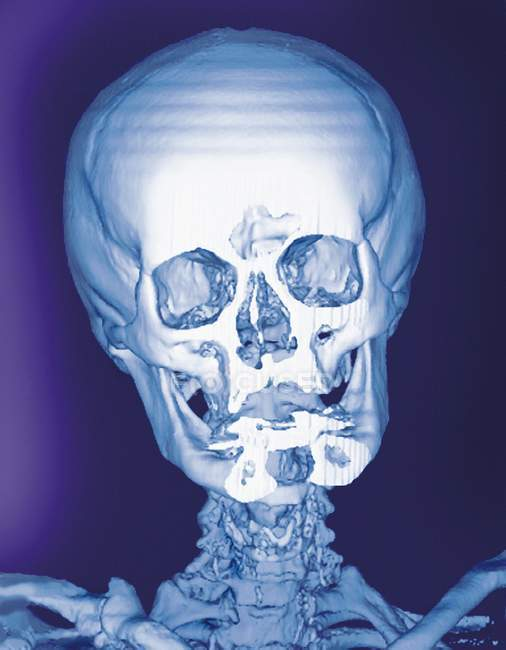 Normale Schädel Anatomie junger Erwachsener — Stockfoto   #160567618