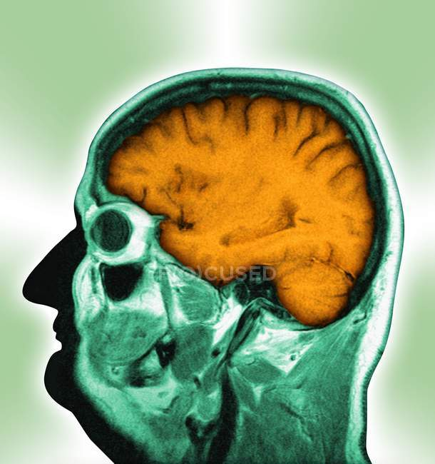 brain essay scan Tailoring treatment by scanning the brain but a larger question is whether it's realistic to have people routinely undergo brain scans call for papers.