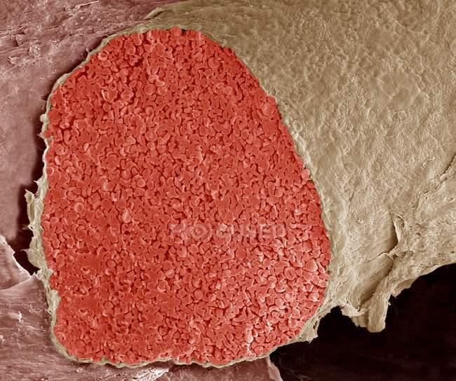 Color micrografía electrónica barrido (Sem) de una sección a través de una vena fetal lleno de glóbulos rojos (eritrocitos, rojo). - foto de stock