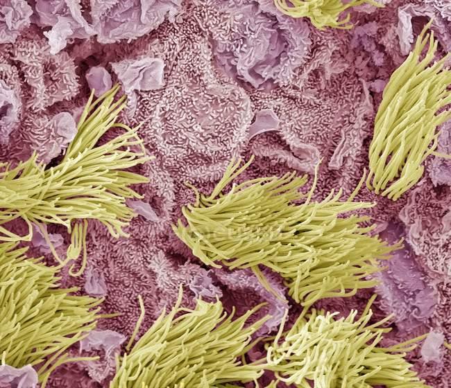 Кольорові мікрофотографія (Sem) аденокарциноми (рак) матки. — стокове фото