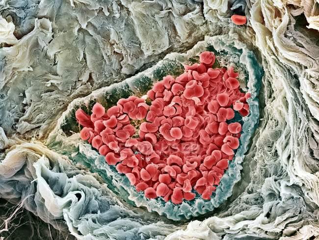 Glóbulos rojos - foto de stock
