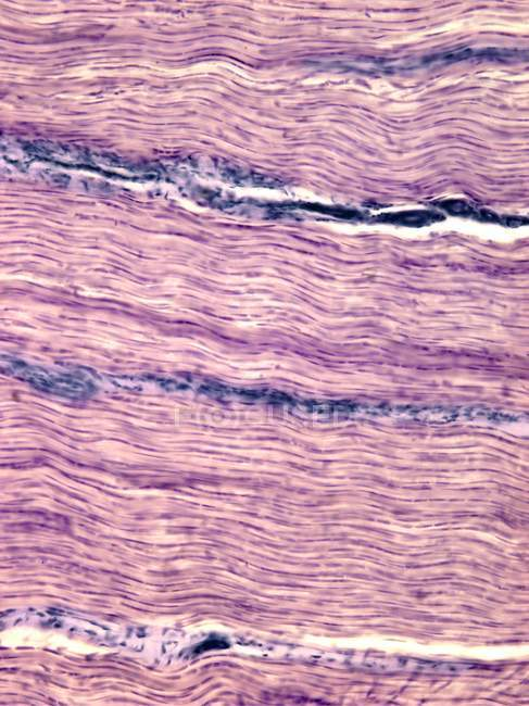 Tendon showing the parallel collagen fibres — Stock Photo