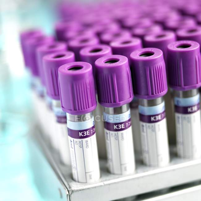 Blood sampling vacutainer tubes in rack, close-up. — Stock Photo