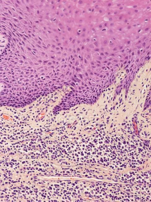 Tejido de las encías con gingivitis - foto de stock