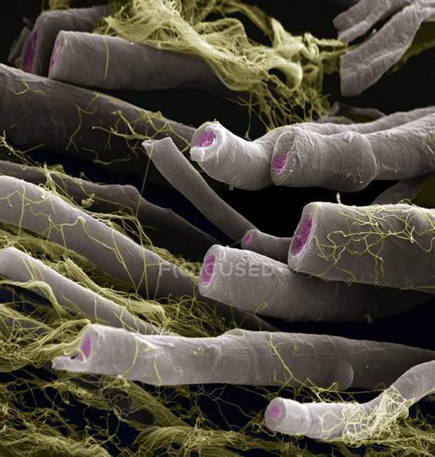 Fibras nerviosas mielinizadas - foto de stock