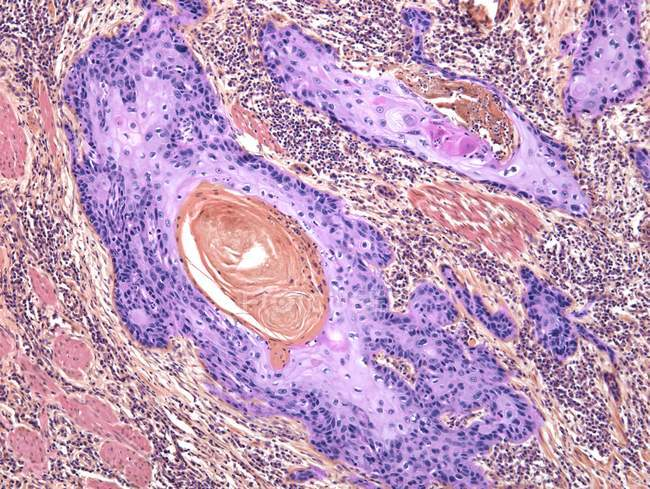 Carcinoma escamoso de la piel - foto de stock