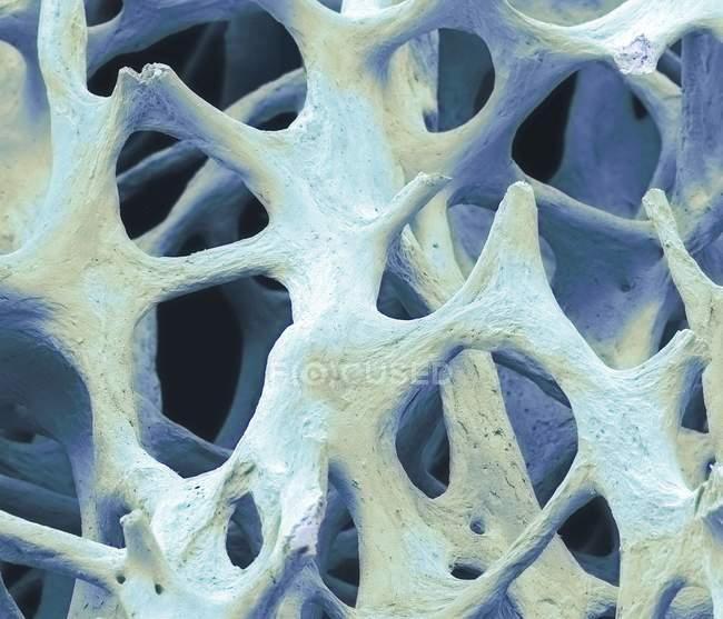 Tecido ósseo cancelado — Fotografia de Stock