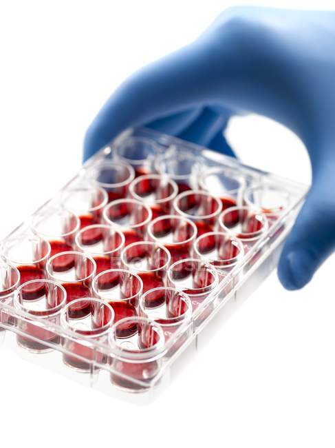 Hand holding a multiwell tray containing blood samples. — Stock Photo