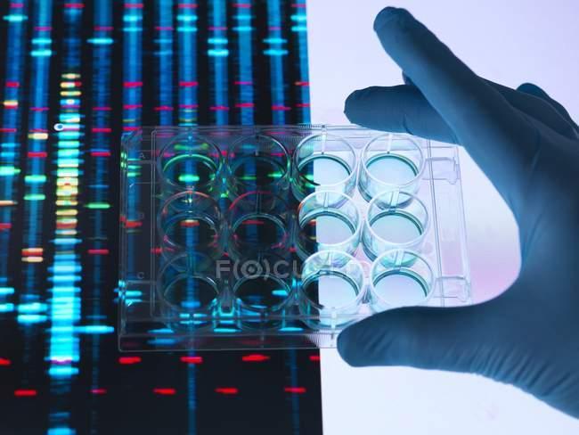 Plaque multi-puits à main avec échantillons avec résultats ADN en arrière-plan . — Photo de stock