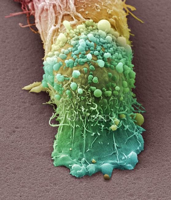 Рак шкіри — стокове фото