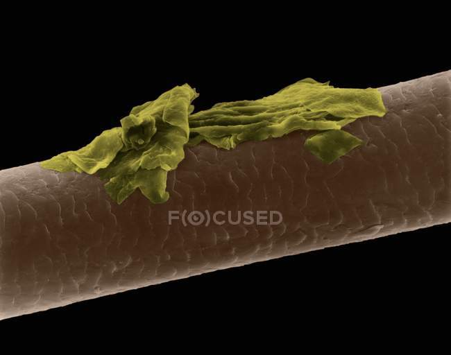 Human hair with dandruff, coloured scanning electron micrograph (SEM). — Stock Photo