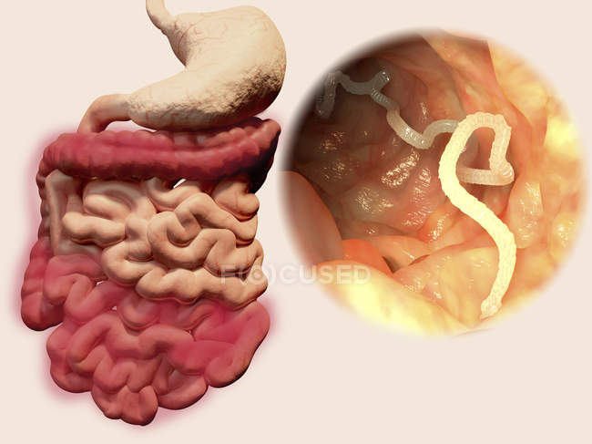 Humane Bandwurminfektion, Illustration — Stockfoto