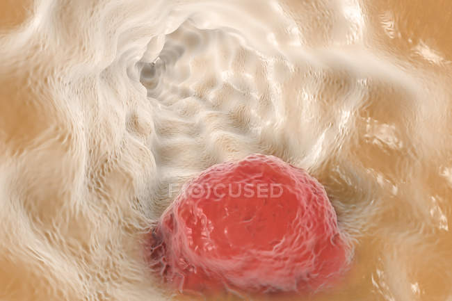 Rendu du cancer oesophagien — Photo de stock