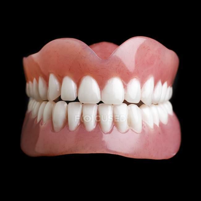 Model Of Human Teeth Stock Photo 161673648
