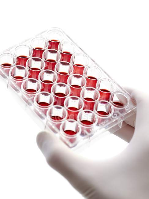 Gloved hand holding multiwell tray containing blood samples. — Stock Photo