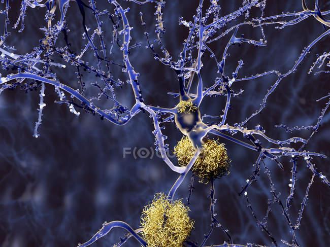 Placas amiloides entre neurônios — Fotografia de Stock