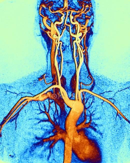 Грудях, шиї і голови артерій — стокове фото