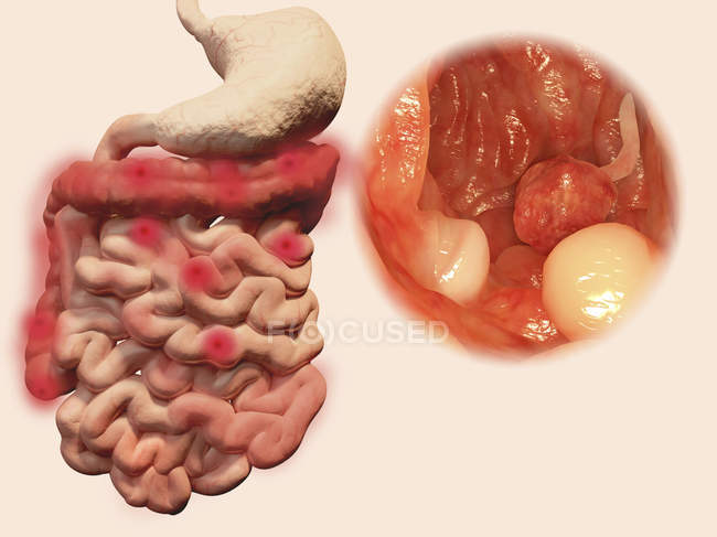 Pólipos intestinais, ilustração computacional . — Fotografia de Stock