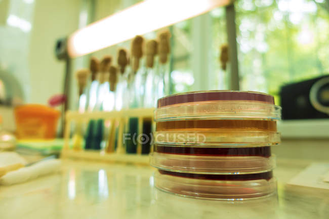 Petri dishes on laboratory table, close-up. — Stock Photo