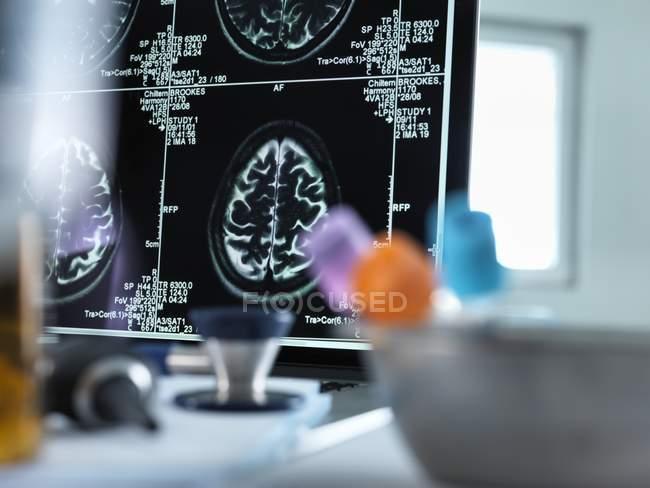 Scanners du cerveau affichées sur un écran — Photo de stock
