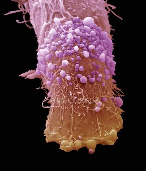 Células cancerosas - foto de stock