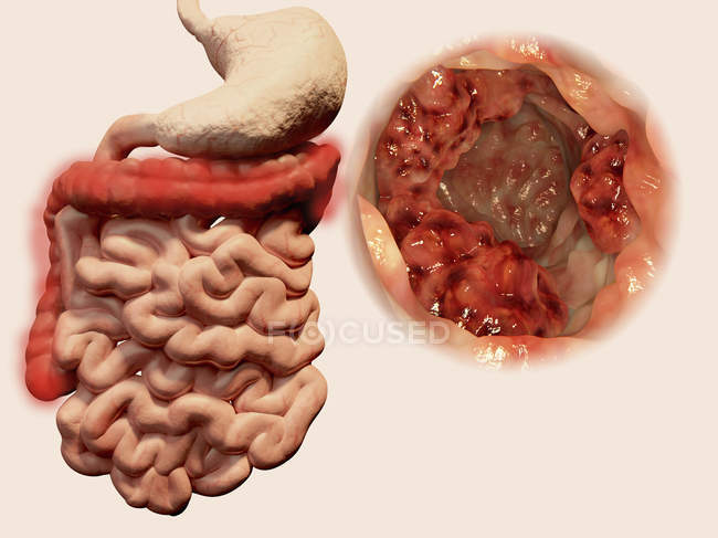 Tumor canceroso en el colon - foto de stock