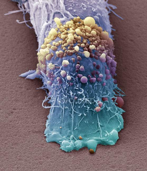Skin cancer cell — Stock Photo