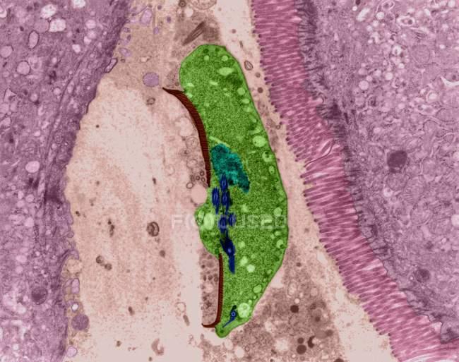 Infecção por protozoários no lúmen intestinal humano — Fotografia de Stock