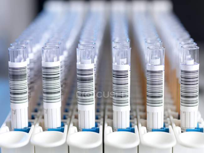 Close-up of tubes for automated blood sample testing. — Stock Photo