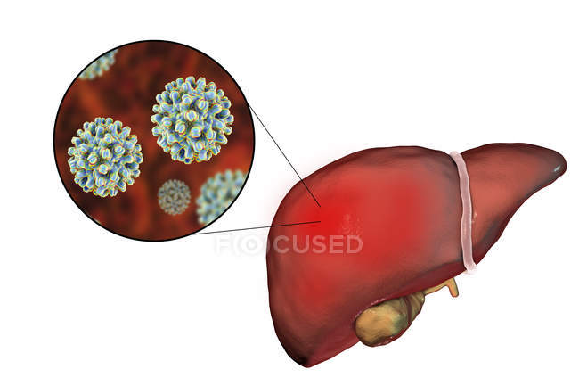 Liver with hepatitis viruses — Stock Photo