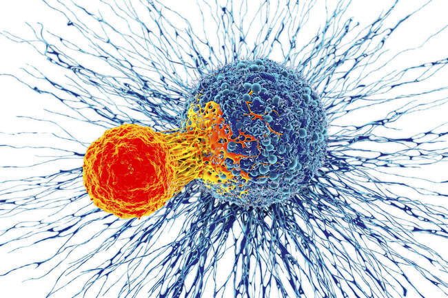 Cancer cell attacked by T cell — Stock Photo